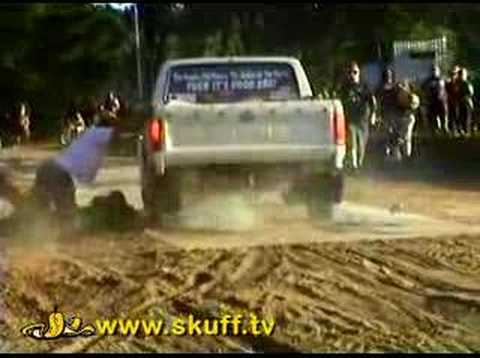Burnout Turns To Horror After Mans Arm Gets Demolished Beneath The Tires! WTF?!?
